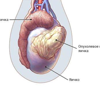 рак яичка